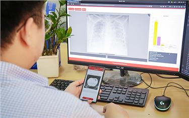 Đại học Duy Tân phát triển ứng dụng Phát hiện Covid-19 qua xử lý phim Xquang, CT